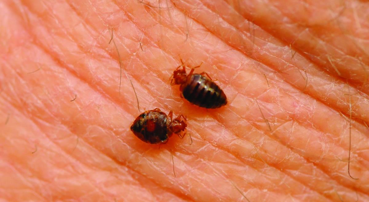 bed-bugs-feeding-on-human-skin-NPMA